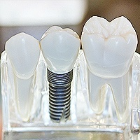 dental-implants-henderson-nv-dentist