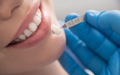 Why Dental Veneers Are Really Worth It