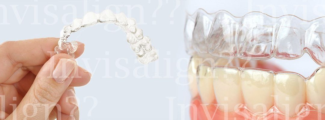 Does Invisalign® Really Work?