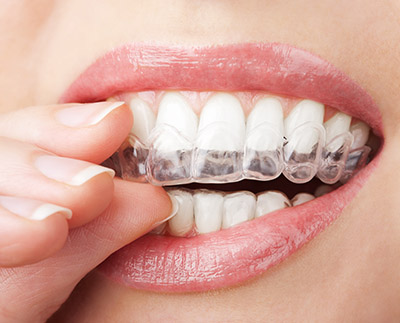 "Does Invisalign® really work? At New York Dental Office, we are regularly asked about Invisalign® and how effective it is at straightening teeth. This is an understandable question, because the process of using clear aligners is relatively new in comparison to wearing metal braces. As with any new technology, people often wonder, ""Does Invisalign® really work?"" and the answer is, yes. If you want a straight and beautiful smile without making it obvious that you are undergoing dental care, this is the best solution for you. As with any procedure, you will need to follow our instructions to ensure that your teeth move correctly and as quickly as possible. For example, aligners need to be worn for around 22 hours a day. While removable, you must be careful to keep them in place for as long as possible in order to keep your treatment schedule on track. They need to come out while you eat, so they do not become damaged or warped. You should also remove them when drinking anything hot since that can also warp them. However, as soon as you are done eating and brushing your teeth, the aligners need to be replaced. In our New York, NY dental office, we recommend that you put your aligners in a special container we provide, so they are not accidentally thrown away. Too many people have put their aligners in napkins, only to find that they are gone after lunch. Replacing them quickly is important, so be sure to keep their case with you instead of taking them out at home and waiting until you come back to replace them. This will help you to stick with the 22 hours a day requirement and keep your straightening plan on schedule. Doing so will take your teeth from crooked to straight in a short period of time. Does Invisalign® really work for adults? Yes, Invisalign® was created for adult teeth. While braces are traditionally associated with children, the process of using clear aligners is better suited for adult teeth. This is because Invisalign® works using a series of clear aligners. Before the treatment starts, an impression will be taken of your teeth, along with measurements and pictures. These will then be used to create 3D images and project what your teeth will do when pressure is applied to certain teeth. The entire treatment plan will be created using high-tech computer software and input from our team of professionals. The Invisalign® lab will then make the aligners. Each aligner is designed to move specific teeth and to be worn for two weeks at a time before being switched out for the next one in the series. Since the aligners are created at the beginning of the process, it works best on adult teeth that are fully mature. Some older teens can also benefit from straightening their teeth with Invisalign®."