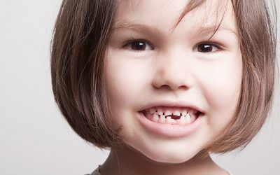 Pediatric Dentist Henderson, NV