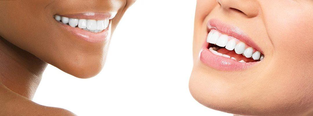 Teeth Whitening Henderson, NV