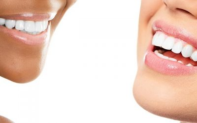 Teeth Whitening Henderson, NV